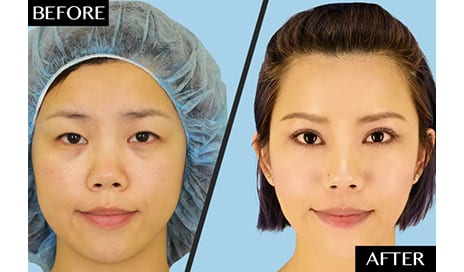 Plastic Surgeons Dispel the Common Misconception Behind Asian Double Eyelid Surgery