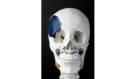 3D Printing Precise Titanium Parts to Replace Bone for Reconstructive Surgery