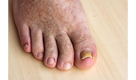 AAD Speaker: Accurate Diagnosis of Nail Fungus Key to Treatment