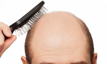 Indian Doctors Get US Patent for Hair Regrowth