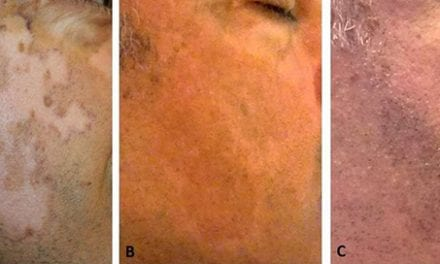 MKTP Surgery Has Long-Term Benefit for Restoring Skin Pigmentation in Vitiligo Patients