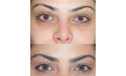 The Tear Trough Plastic Surgery Treatment Gets Rid of Dark, Under-Eye Circles