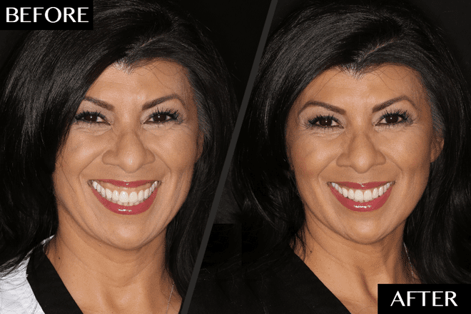 The Fast and Easy Way to Fix a Gummy Smile Without Surgery