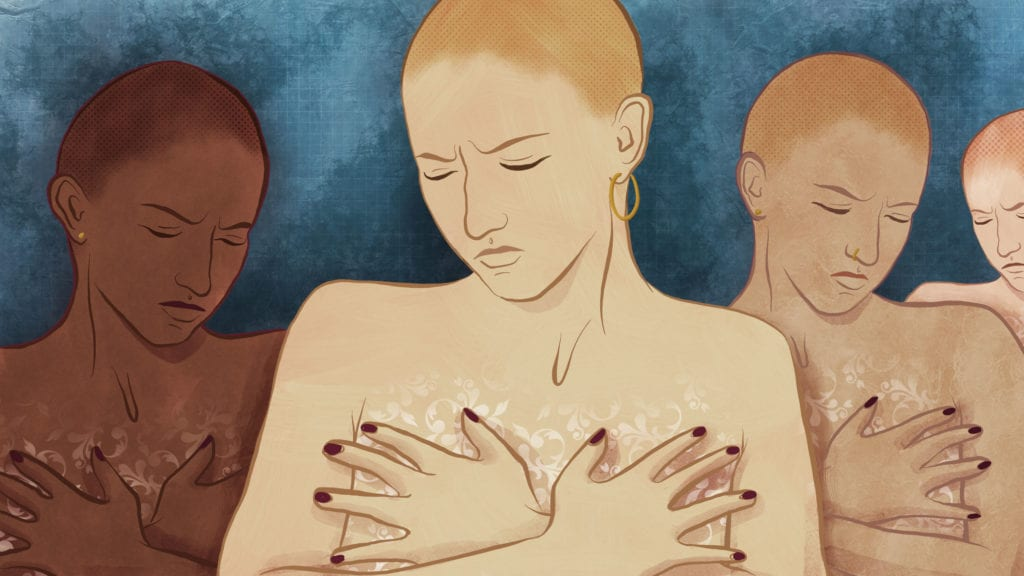 Why a Growing Number of Women with Breast Cancer Are Choosing Double Mastectomy