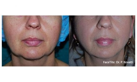 InMode Skin Tightening Technology is the Missing Link Providing Surgery Like Results Without Cutting, Can be Performed in the Office with Minimal to no Downtime