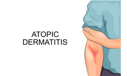 Routine Use of Corticosteroids for Atopic Dermatitis Discouraged by IEC