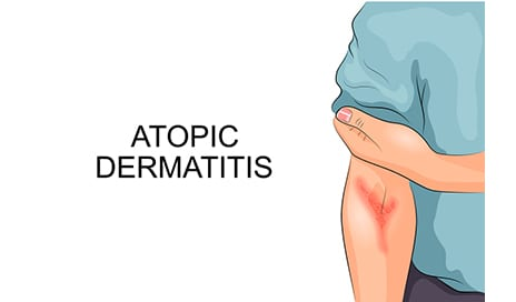 House Dust Mites and Severe Atopic Dermatitis: A New Connection