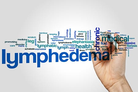 Are There Surgical Options for Breast Cancer–Related Lymphedema?