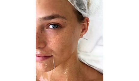 Is Cosmetic Acupuncture The Holistic Alternative To Botox?