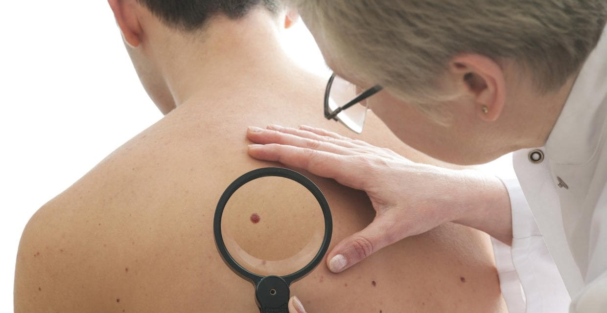 Moles Not the Only Way to Spot Deadly Melanoma
