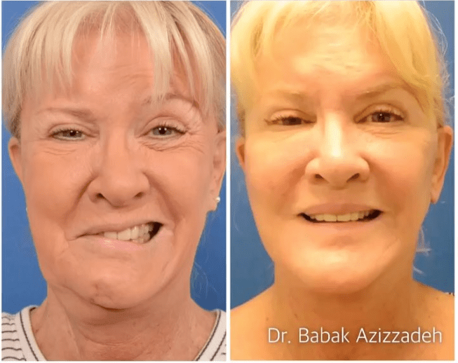 The Facial Nerve Surgery That Finally Fixed Mary Jo Buttafuoco's Lopsided Smile
