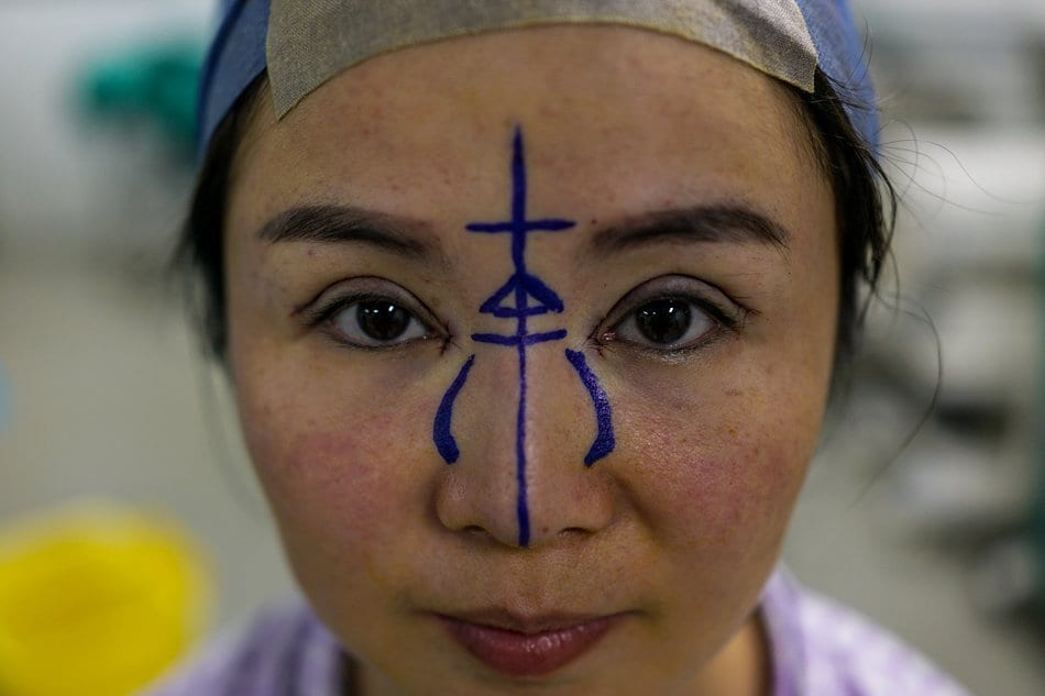 Plastic Surgery Booms in China Amid New Wealth