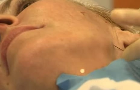 Women Are Using Needle and Thread for Weird Facelift Promising Immediate Results