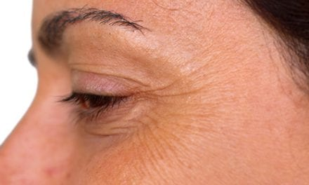 Adhesive Pads Improve Wrinkles in Crow's Feet Area