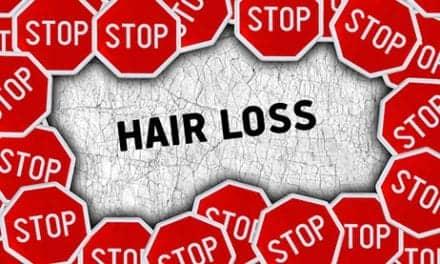 Hair Restoration Surgeries Jumped 60 Percent Worldwide