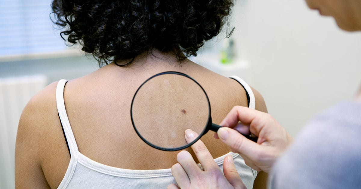 Why You Should Get a Skin Cancer Screening at the End of Summer