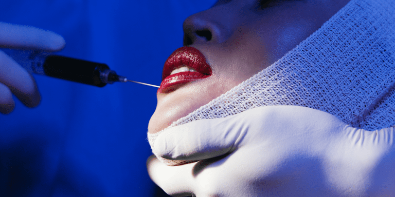 The Most Popular City for Lip Injections Is Pretty Surprising