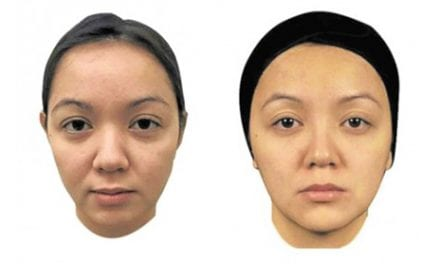 Facelift, But No Surgery? Here's the Treatment for You