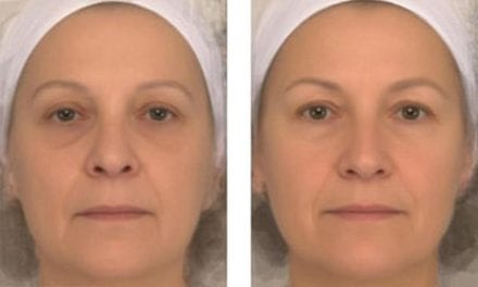 People with Happier Resting Faces Are Seen As Healthier – Even If They Have No Makeup On