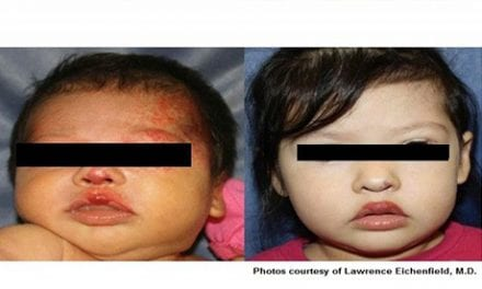 Laser Treatment in Children