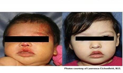 Laser Treatment in Children