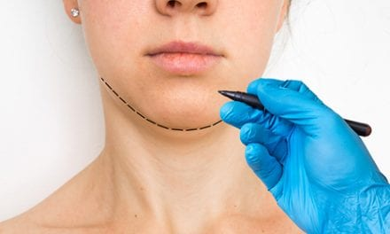 Botox Improves Chin Contour