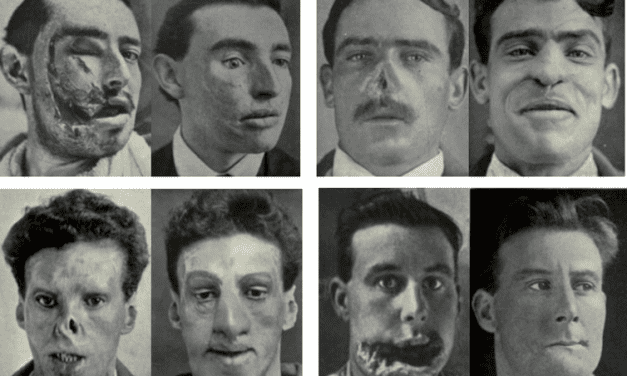 Despite Appearances, Not All People with Scarred Faces are Movie Villains