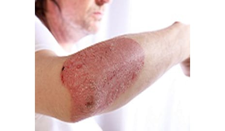 FDA Approves Stelara for Plaque Psoriasis
