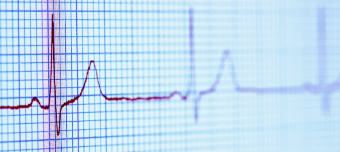 Study Suggests Botox May Help Prevent AFib After Heart Surgery