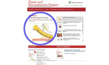Method Developed to Minimize Damage On Sural Artery Perforator Flap Surgery