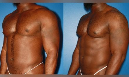 5 Plastic Surgeries That Make Fit Guys Look More Jacked