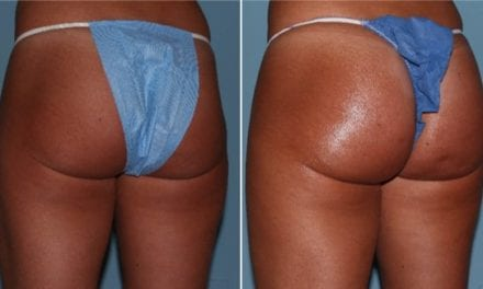 Non-Surgical Butt-Lifts Are the Latest Trend In Injectables