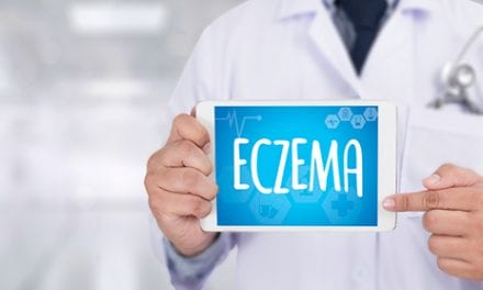 First Childhood Eczema, Then Adult-Onset Atopic Dermatitis
