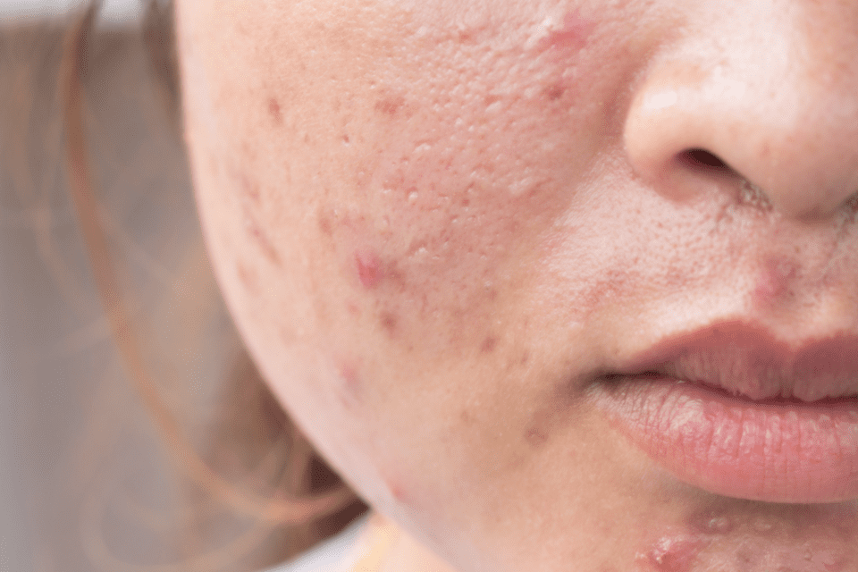 15 Things You Should Never Do if You Have Acne, According to Dermatologists