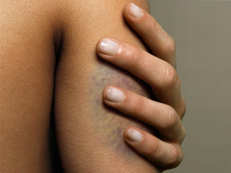 Here Are the Only Ways to Actually Get Rid of a Bruise Faster