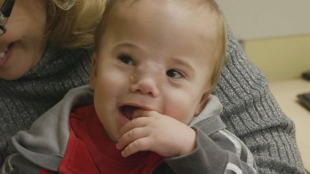 Doctors Reveal Baby's Face Through Life-Altering Surgery