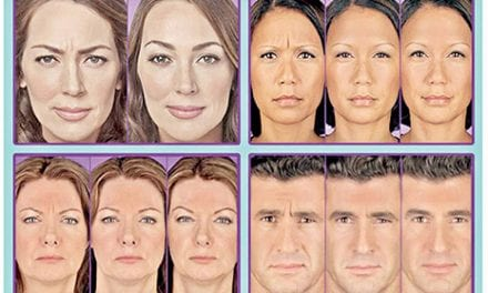 Facial Rejuvenation Therapy for a Younger Face