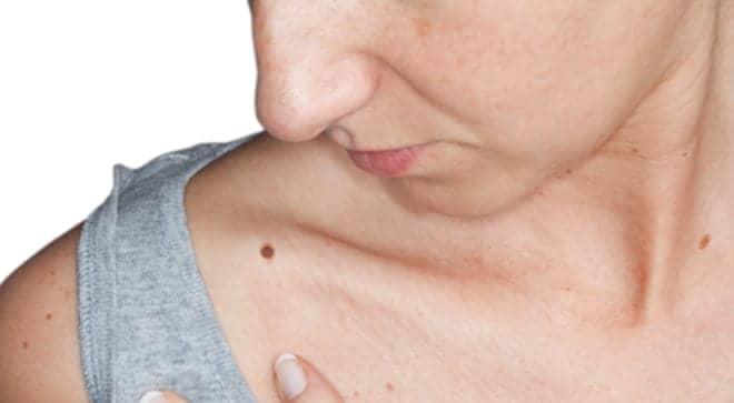 Identifying Safe Windows for Melanoma Surgery Improves Survival