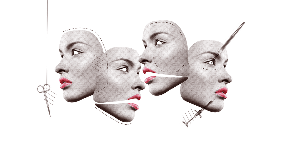 This Is The Top Plastic Surgery Trend of 2017