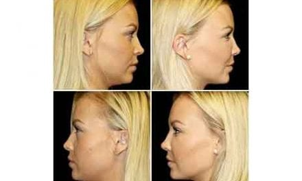 Just How Revolutionary is Stem Cell Injectable Facial Rejuvenation?
