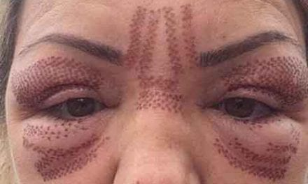 What One Rogue Beautician Told Undercover Reporter in a Bid to Give Her Botox Illegally