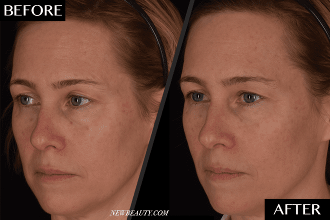 The New 'Natural' Filler That Uses Your Own Blood to Plump Up Your Skin