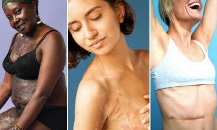 People Are Unapologetically Baring Their Scars In This Stunning Photo Series
