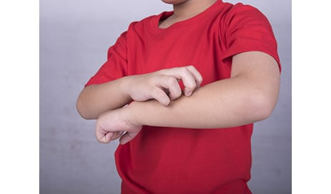 Miller School Dermatologists Identify Genetic Triggers for Chronic Itch