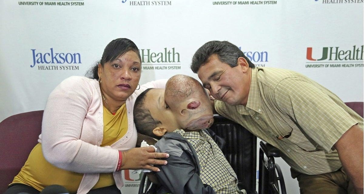 Boy with 10-Pound Facial Tumor Dies After Surgery