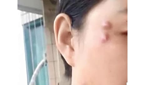 Woman is Left with Large Lumps on Her Face That Move Around After Botched Plastic Surgery in China