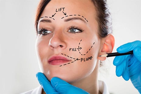 Ultherapy Versus Facelift