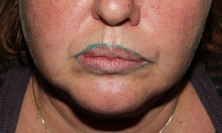 Woman's Permanent Lip Tattoo Turns Green After Disastrous Cosmetic Procedure