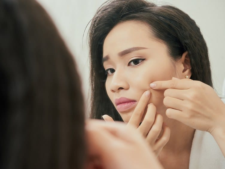 Is Popping Your Pimples Really That Bad?
