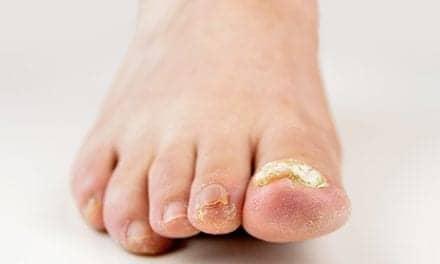 AI Beats Dermatologists in Diagnosing Nail Fungus